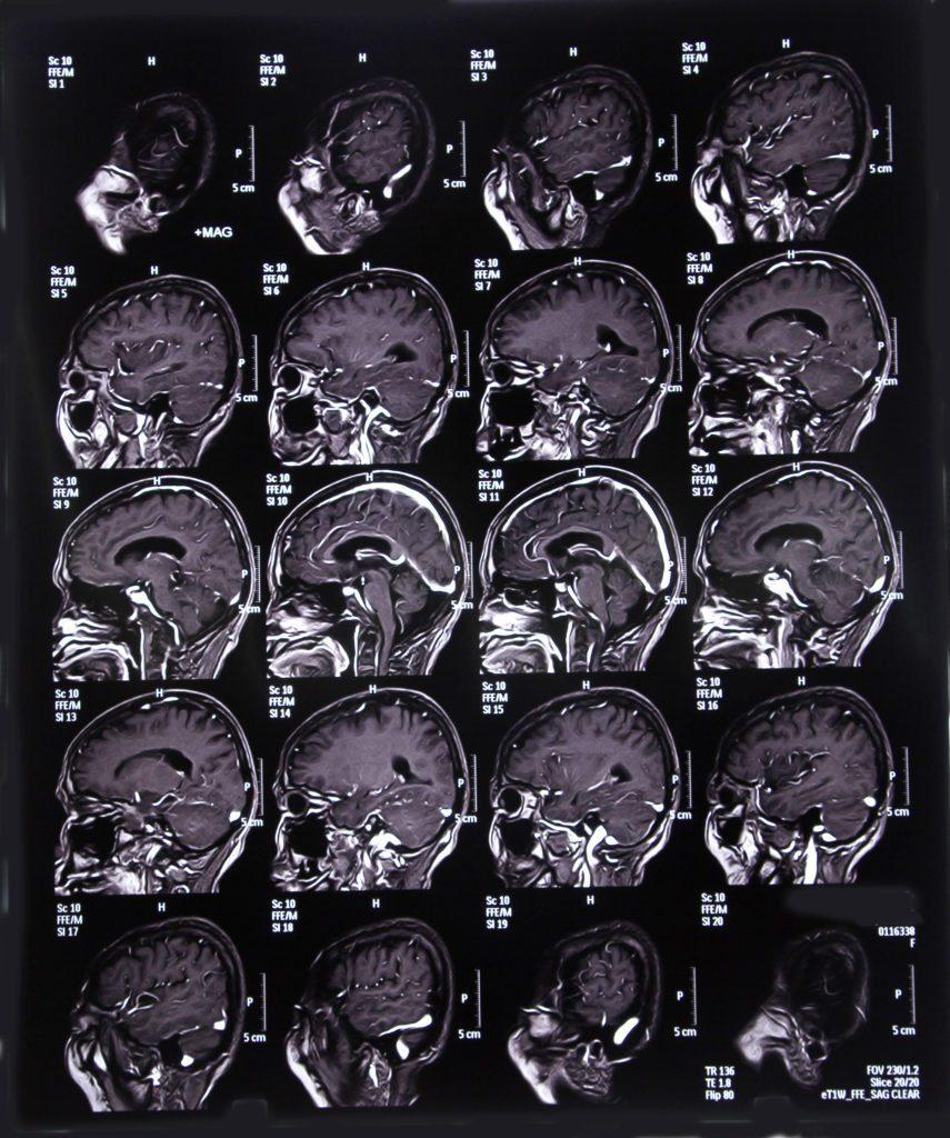 MRI_156416717